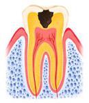 穴が象牙質にまで拡大している状態
