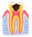 歯がかなり失われている状態