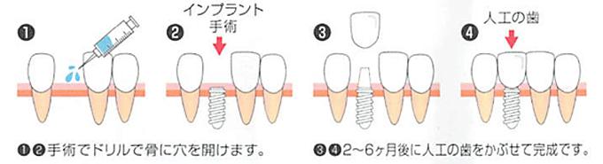 「インプラント治療」の流れ・メリット・デメリット図