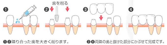 「ブリッジ治療」の流れ・メリット・デメリット図