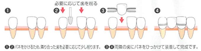 「入れ歯治療」の流れ・メリット・デメリット