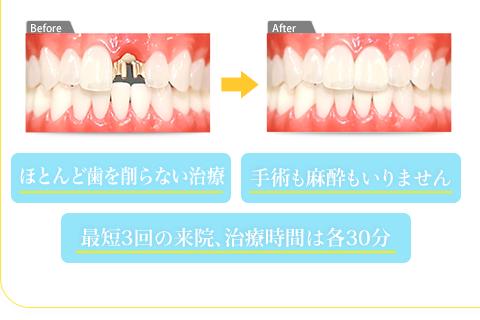 ほとんど歯を削らない治療