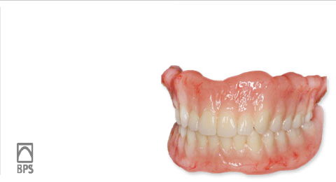 BPS入れ歯