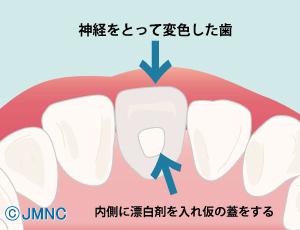 神経を取って変色した歯 内側に漂白剤を入れ仮の蓋をする